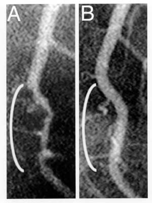 Figure 1 -- Coronary angiograms of the distal left ...